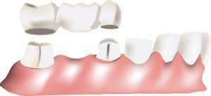Dental Bridges Arlington Heights, IL