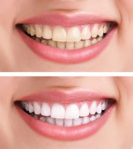 Teeth Whitening Arlington Heights, IL