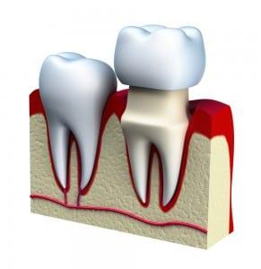 Dental Crowns Arlington Heights IL